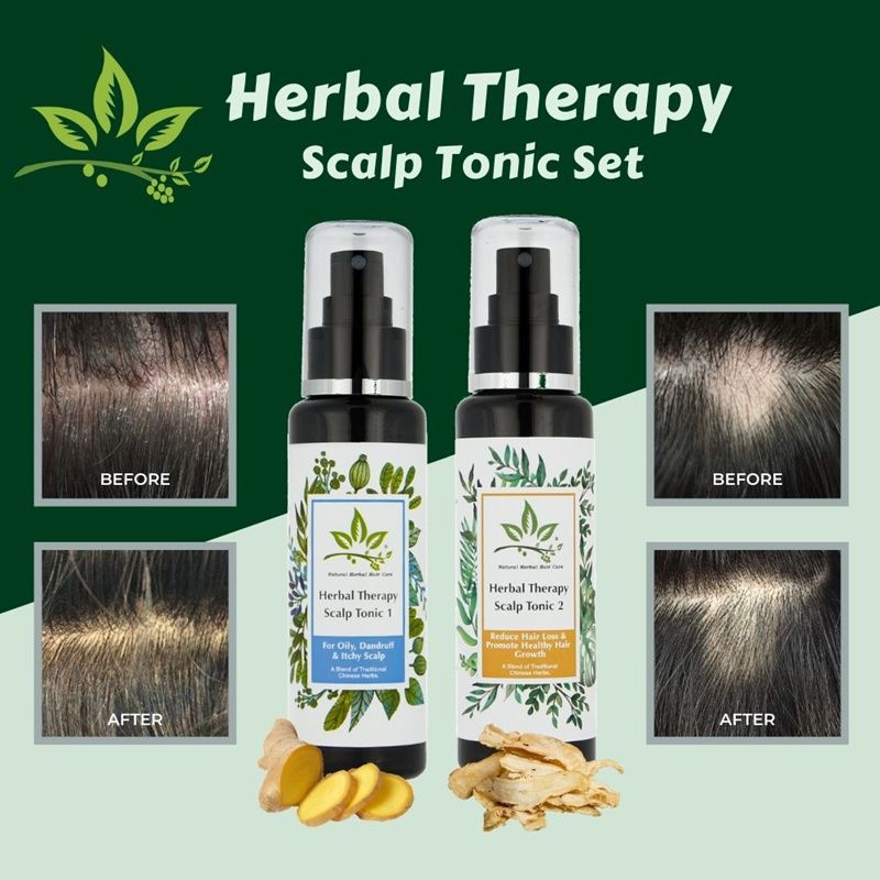 Herbal Therapy Scalp Tonic/Anti-Dandruff/Hair Loss/Hair Fall Shampoo/Natural Herbal Hair Care Deals for only S$34.9 instead of S$45