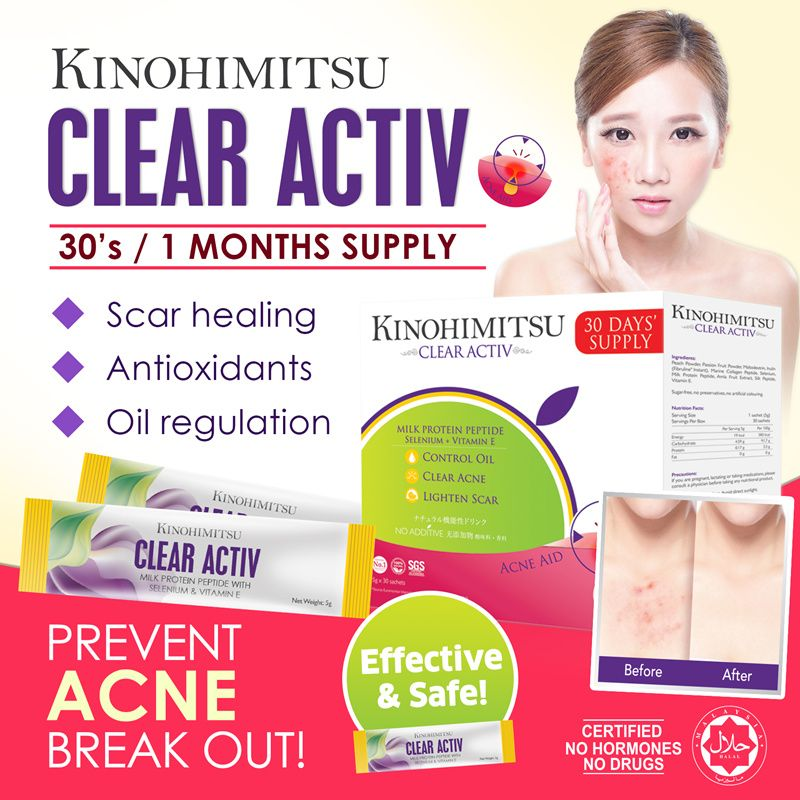 SUPPLY] Clear Activ