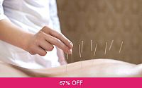 1x Slimming Acupuncture Deals for only Rp100.000 instead of Rp300.000